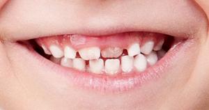 Tandproblem hos barn med FASD